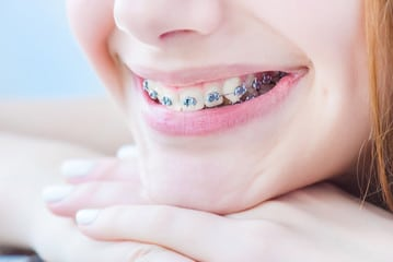 avoid bacteria while wearing braces