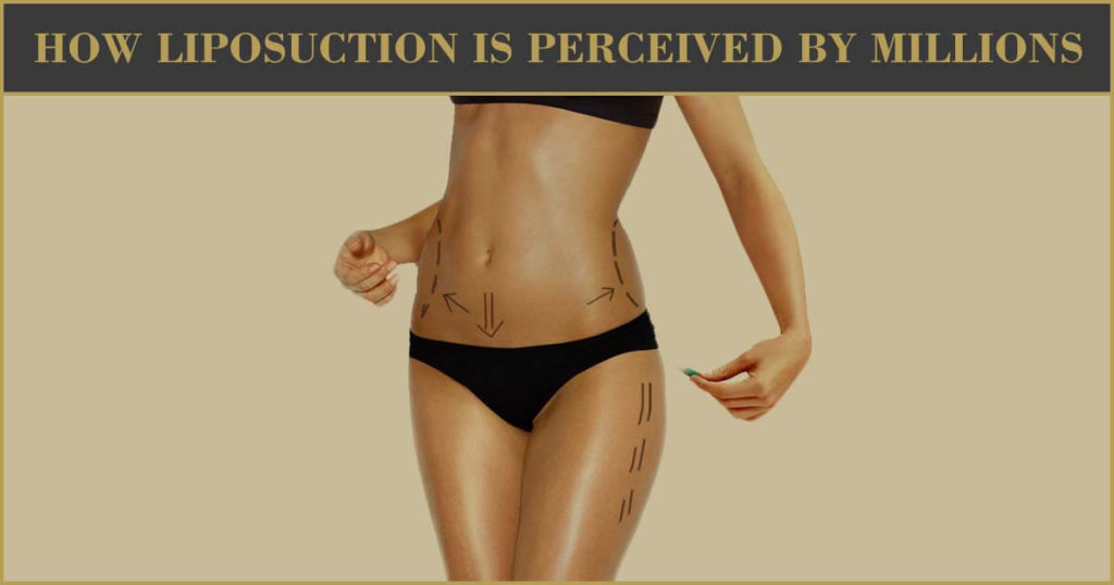 How Liposuction Is Perceived By Millions