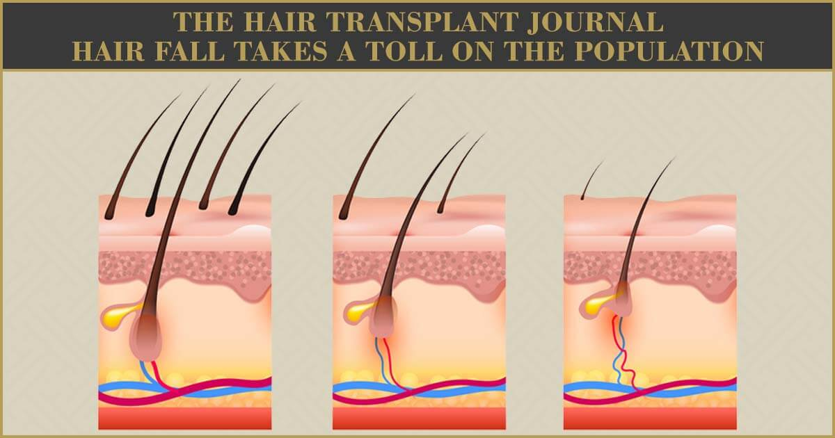 The Hair Transplant Journal