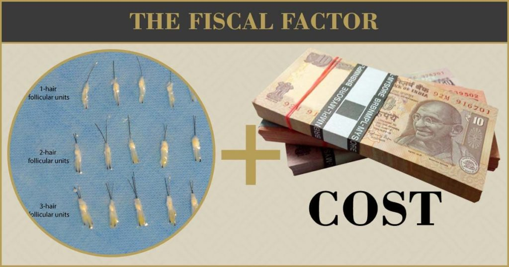 The fiscal factor