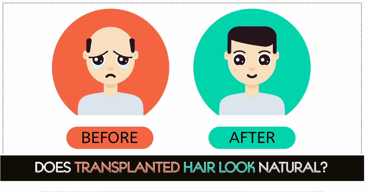 Does Transplanted Hair Look Natural