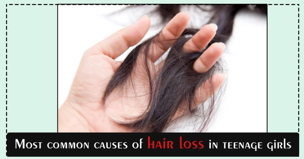 Most common causes of hair loss in teenage girls