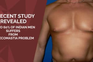A Recent Study Revealed 40% to 60% of Indian men suffers from Gynecomastia problem