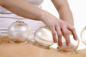 cupping (1)