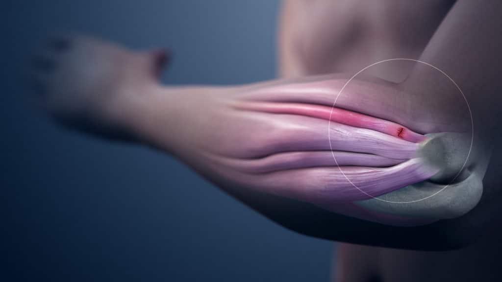Tendinitis- Hip Pain Causes
