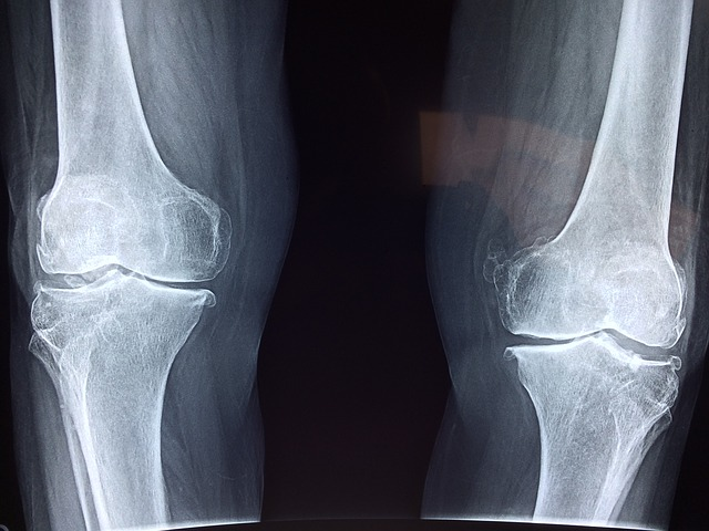 Joint Cartilage